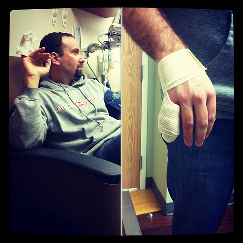 New tool delivered from Amazon today = time spent in the ER with cut pinky. @bgladd